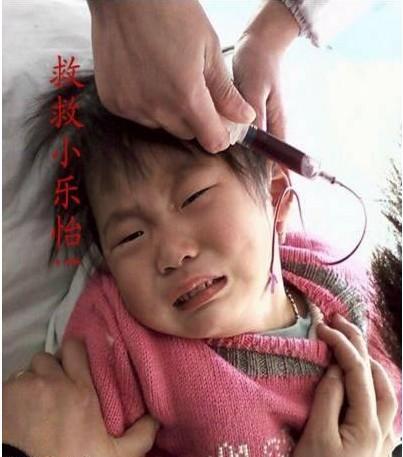 小乐怡每月输血前的抽血化验,小乐怡看见针头都害怕,但是没办法,为了健康,做父母的只能配合医生